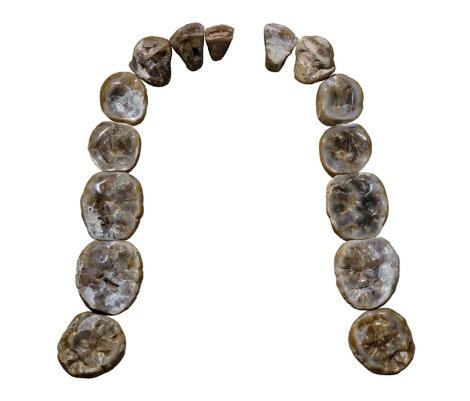 Yaklaşık 2 milyon yıl önce yaşadığı tahmin edilen hominide ait olan bu dişler, homidin Homo habilislerden geldiğini araştırmacılara düşündürüyor.