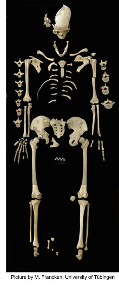 Çalışmalarda lösemi olduğu söylenen, 7000 yıllık iskelet. Almanya'da eski bir Neolitik dönem yerleşim biriminde bulunmuştur.