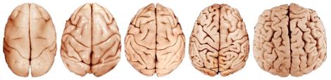 brain-evolution-composite