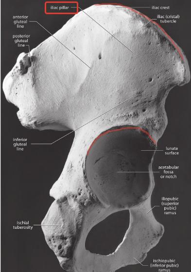 Bu örnekte pelvis üzerinde normal boyutlarda bir iliac pillar görünüyor.