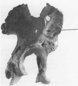 King 65 isimli bir hominid fosilinde yapılan pelvis kemiği çalışmalarında ilgili yapı tespit edilmiştir.