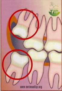 Alt ve üst molar dişler (wisdom tooth), çene anatomisinin evrimine paralel olarak vestigial özellik kazanmıştır.