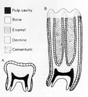 B'deki molar dişte taç kısmında bir hipsodont görülmektedir.